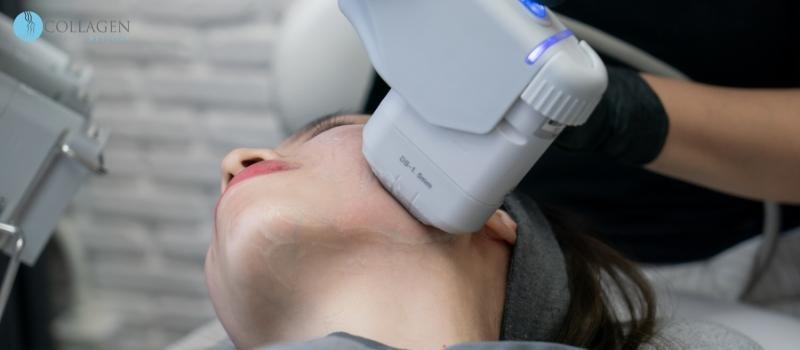Botox Alternative Carnoustie