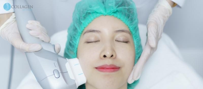 Botox Alternative Ilkeston