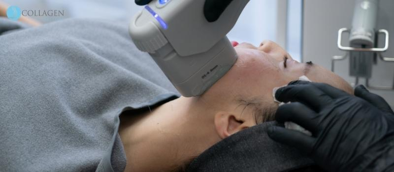 Botox Alternative Irlam
