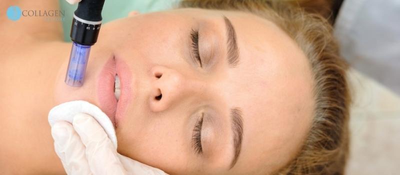 Botox Alternative South Woodham Ferrers