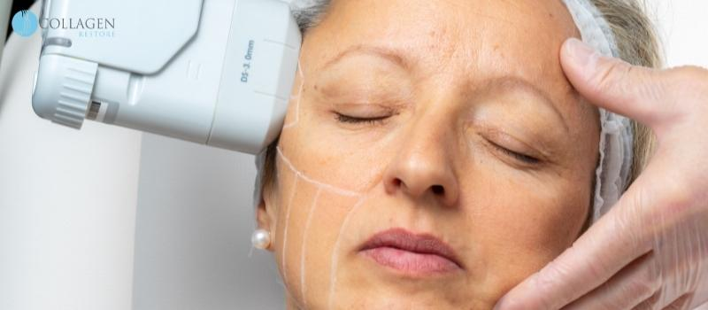 Does a facelift make you look younger?