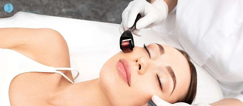 Microneedling Treatment Addlestone