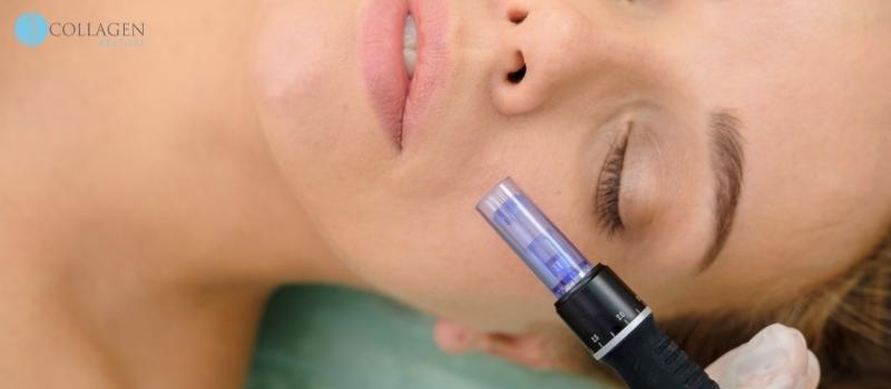 Microneedling Treatment Ardrossan