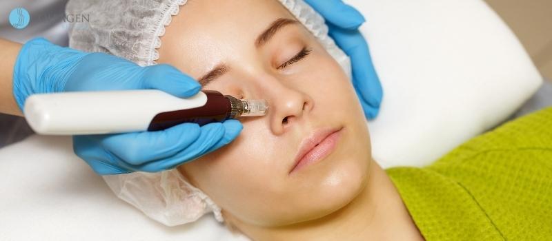 Microneedling Treatment Bolsover
