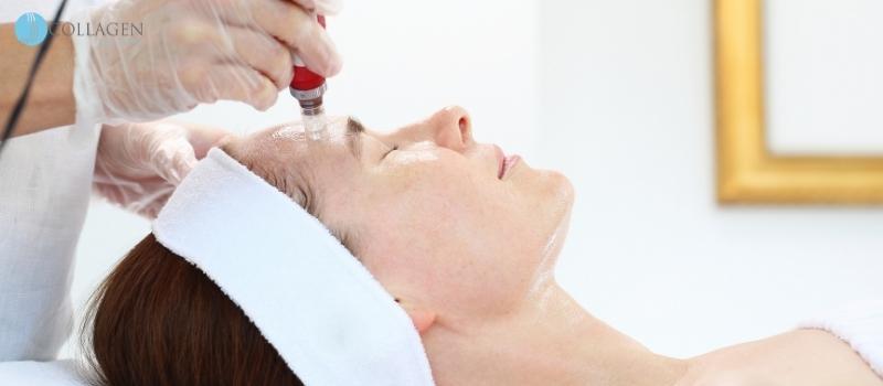 Microneedling Treatment Bourne