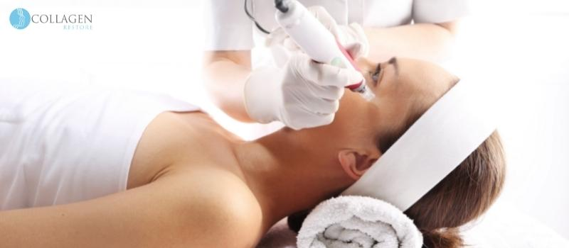 Microneedling Treatment Bury