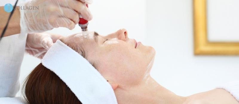 Microneedling Treatment Buxton