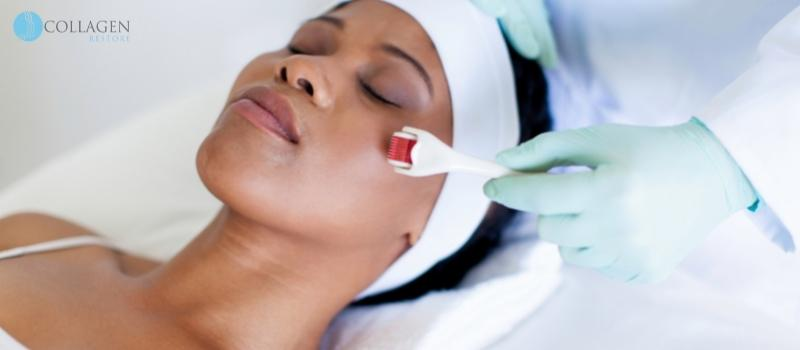 Microneedling Treatment Clevedon
