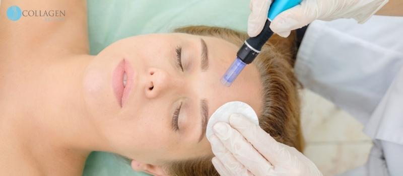 Microneedling Treatment Crosby