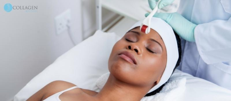 Microneedling Treatment Inverness