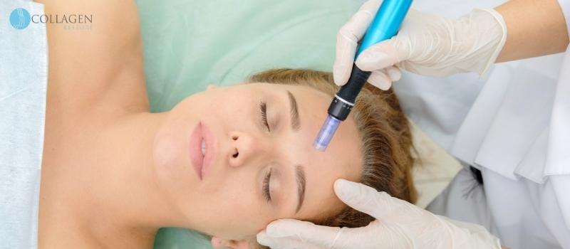Microneedling Treatment Leek