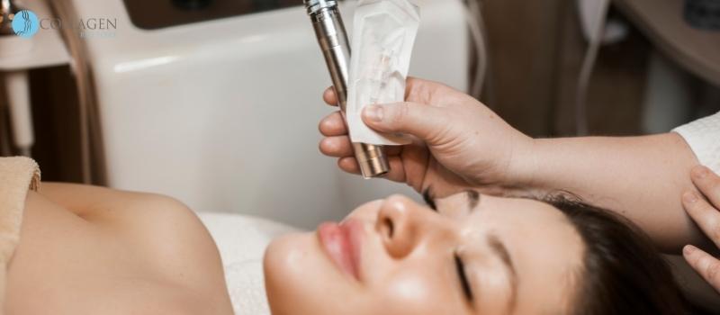Microneedling Treatment Nailsea