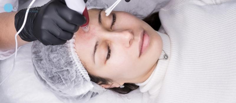 Microneedling Treatment Reading