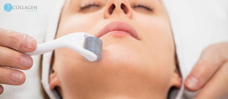 Microneedling Treatment Renfrew