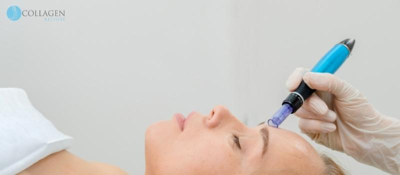 Microneedling Treatment Shirley