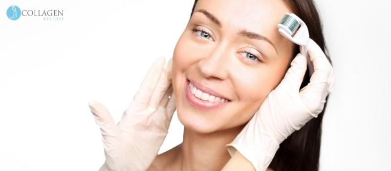 Microneedling Treatment St. Ives