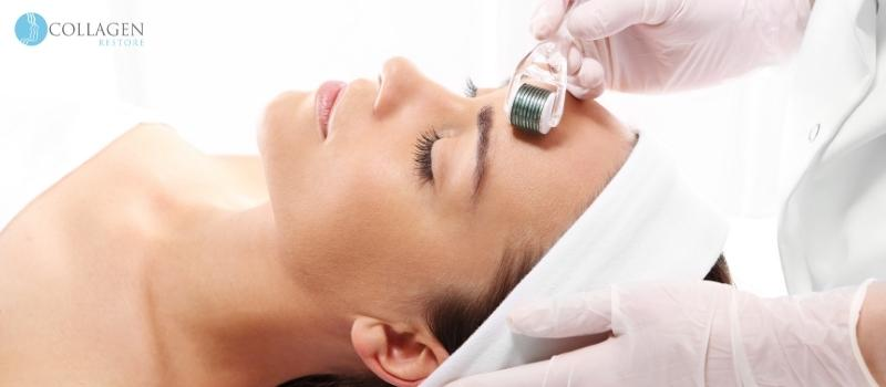 Microneedling Treatment Stirling