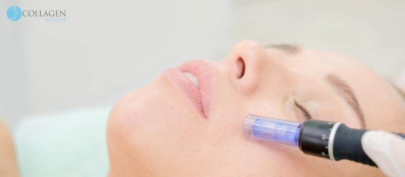 Microneedling Treatment Uttoxeter